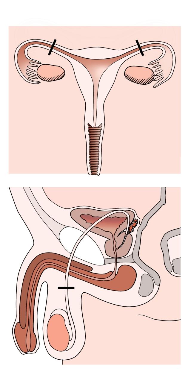 Geschlechtsorgane-Mann-Frau-Sterilisation